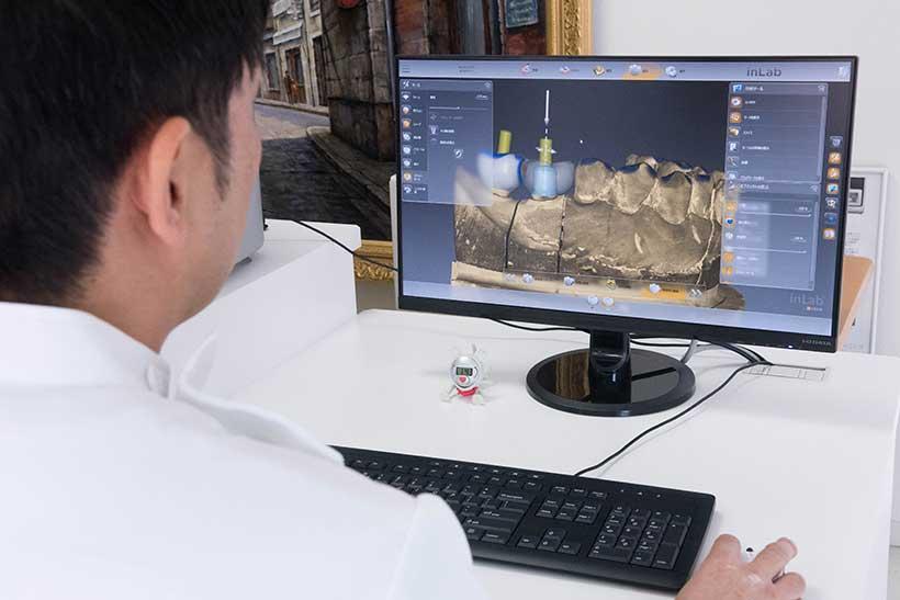 歯型を読み取り、3Dデータ化します。