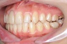 治療後(横顎)