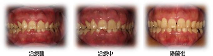 口の中にいるバイ菌の画像